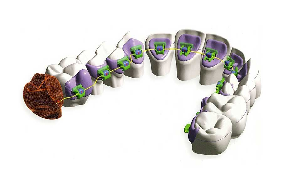Lingual orthodontics at Verona
