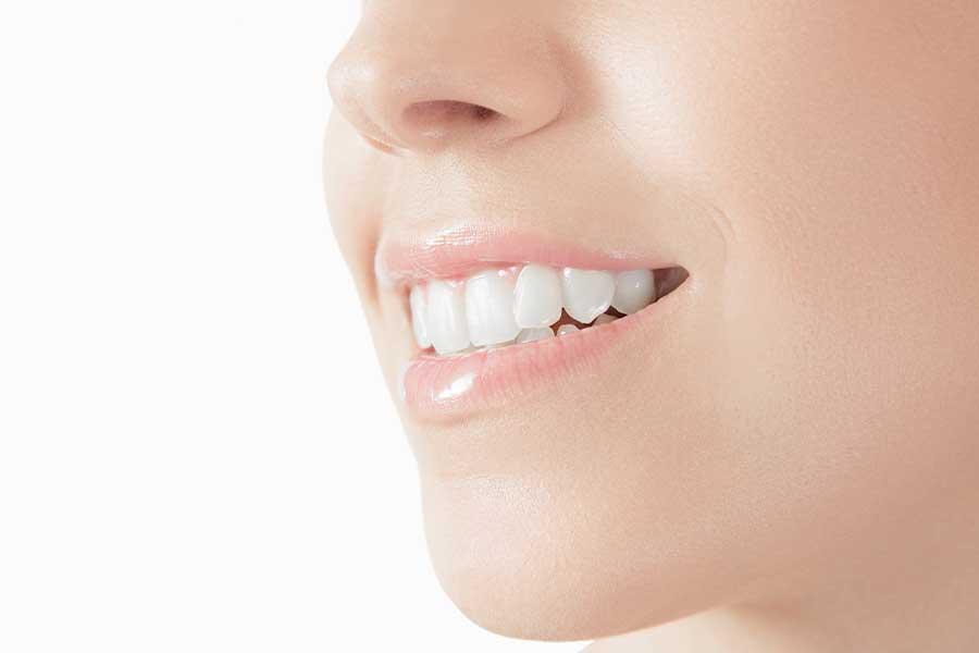 sbiancamento dentale verona